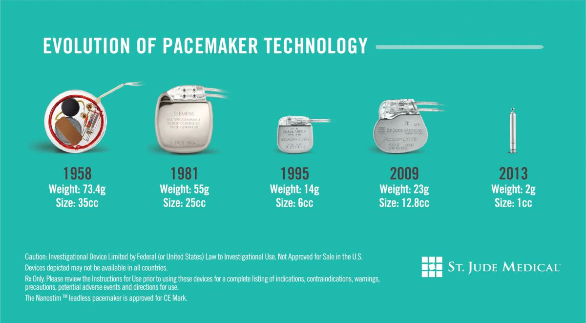 Patients in addition Category Diseases together with CardiacCatheterization besides 20581827 additionally Pacemaker What Is It. on pacemaker patient stories